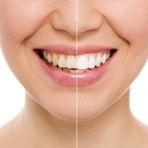 Ästhetische Zahnheilkunde Zahnarzt Spandau