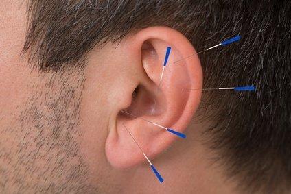 Akupunktur Zahnarzt Spandau
