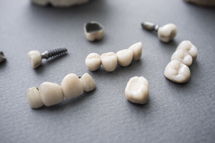 Implantate Zahnarzt Spandau